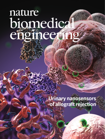 Early detection of organ transplant rejection using urine tests published in Nature Biomedical Engineering